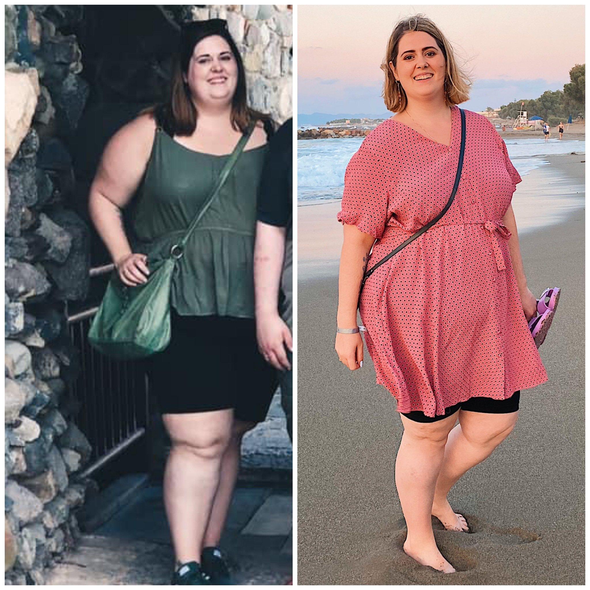 1 års status - Livet med en gastric sleeve 7