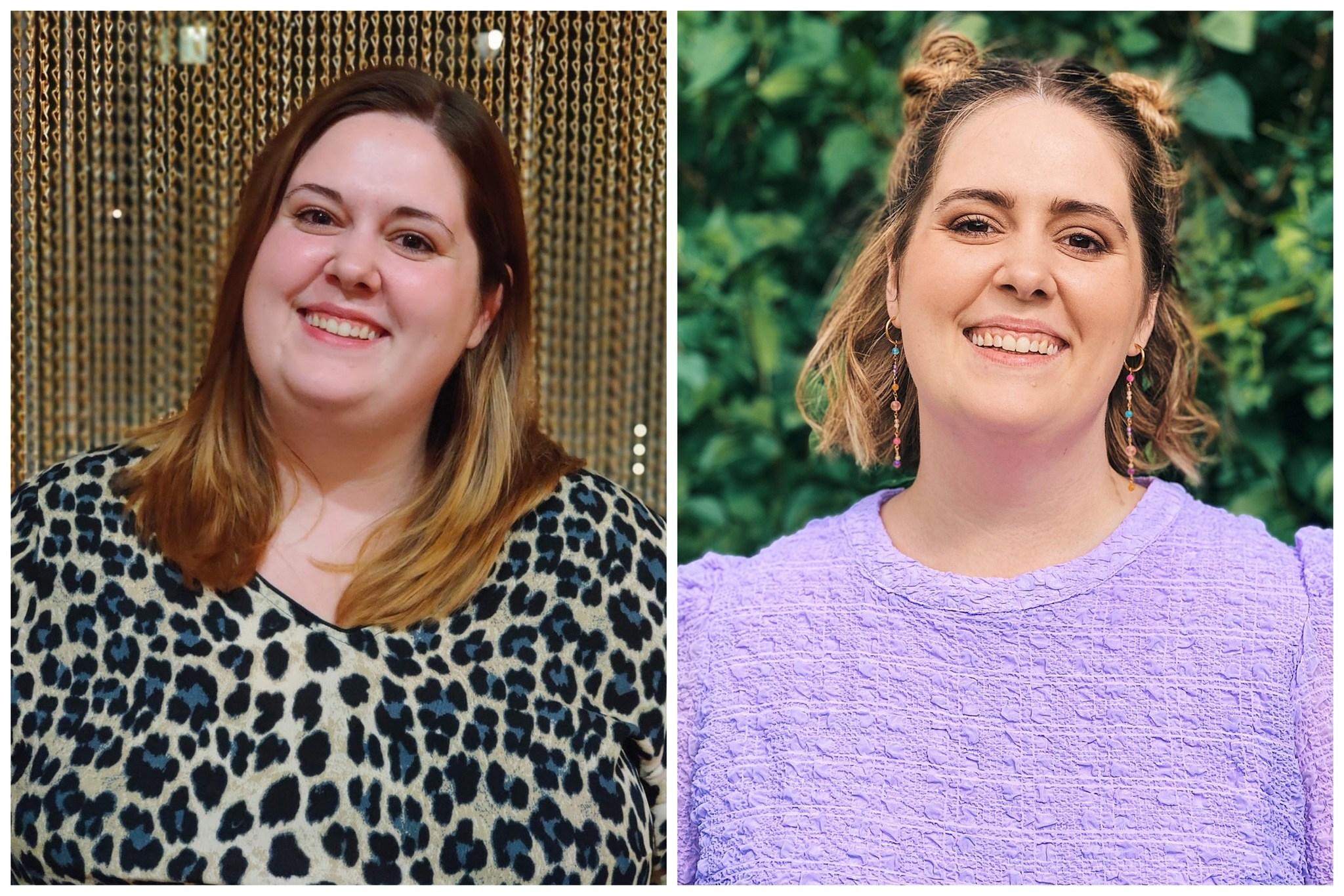 Billedet til højre er taget før jeg fik min gastric sleeve og billedet til venstre er efter et vægttab på 52,1 kg.